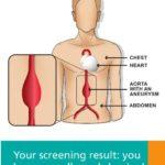165827 aneurysm leaflet0001